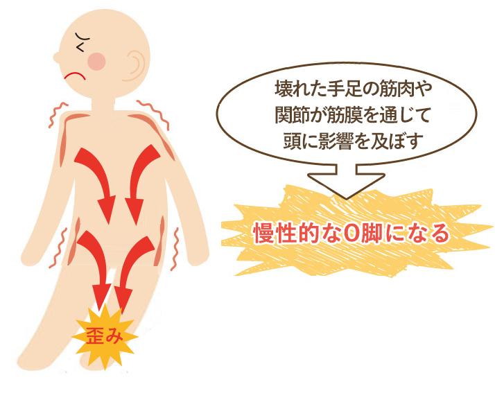 この期間が長く続く程、筋肉などの軟部組織にカルシウム沈着や癒着がおこり慢性的なO脚になってしまいます。