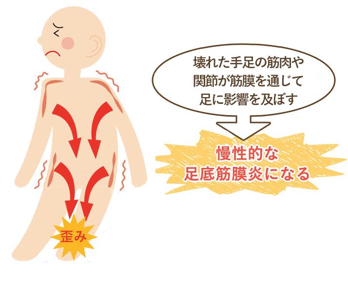 この期間が長く続く程、筋肉などの軟部組織にカルシウム沈着や癒着がおこり慢性的な足底筋膜炎になってしまいます。