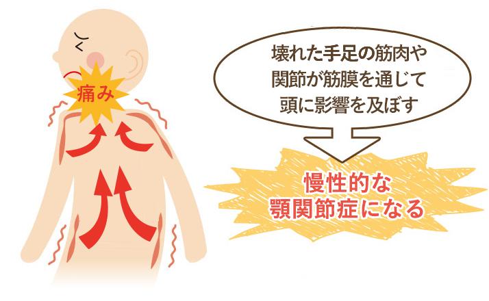 この期間が長く続く程、筋肉などの軟部組織にカルシウム沈着や癒着がおこり慢性的な顎関節症になってしまいます。