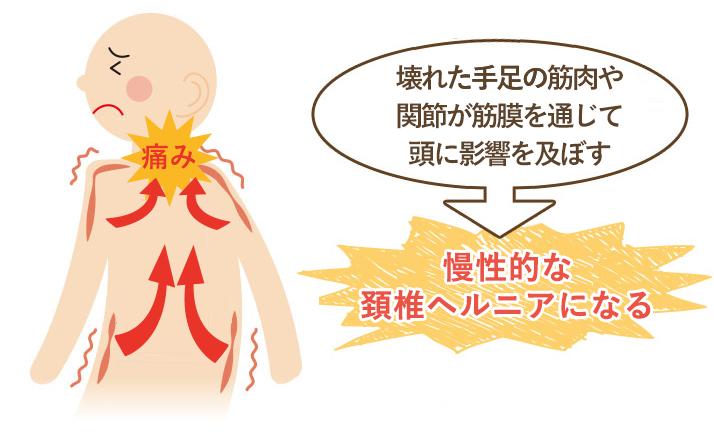 この期間が長く続く程、筋肉などの軟部組織にカルシウム沈着や癒着がおこり慢性的な頚椎ヘルニアになってしまいます。