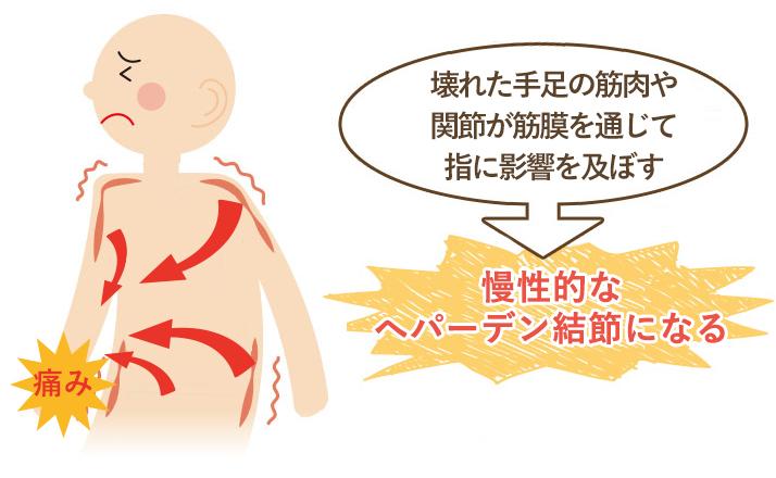 この期間が長く続く程、筋肉などの軟部組織にカルシウム沈着や癒着がおこり慢性的なへパーデン結節になってしまいます。