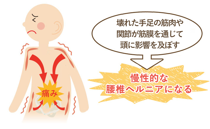 この期間が長く続く程、筋肉などの軟部組織にカルシウム沈着や癒着がおこり慢性的な腰椎ヘルニアになってしまいます。