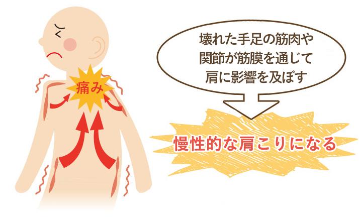 この期間が長く続く程、筋肉などの軟部組織にカルシウム沈着や癒着がおこり慢性的な肩こりになってしまいます。