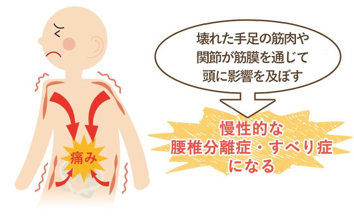 この期間が長く続く程、筋肉などの軟部組織にカルシウム沈着や癒着がおこり慢性的な腰椎分離症・すべり症になってしまいます。